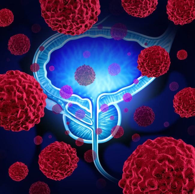 prostate cancer pic copy 2