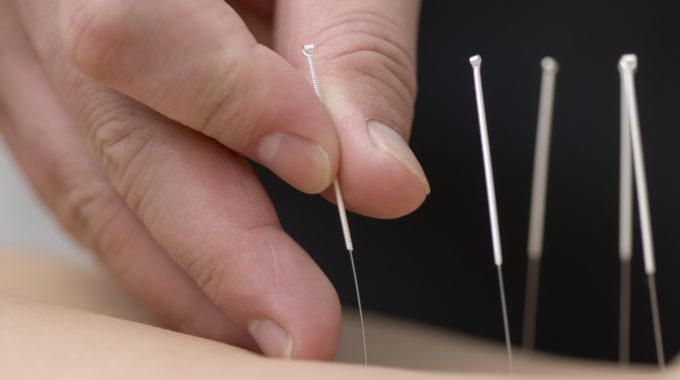 Acupuncture treatment for Interstitial Cystitis – any evidence?