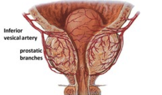 Prostate Arterial Embolization (PAE)  To Shrink Your Prostate – New Study