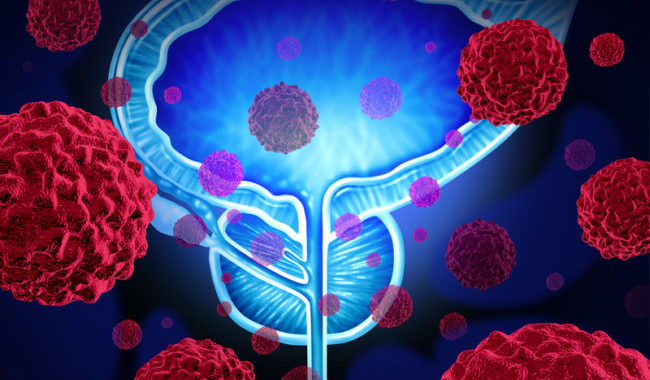 Prostate Cancer: More Distress = More Treatment