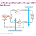 ADT, Apalutamide And Exercise In The Treatment Of Prostate Cancer